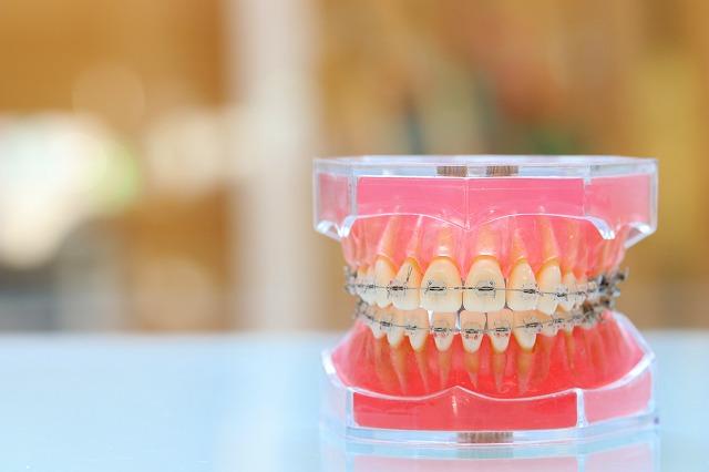 歯列矯正 歯科矯正